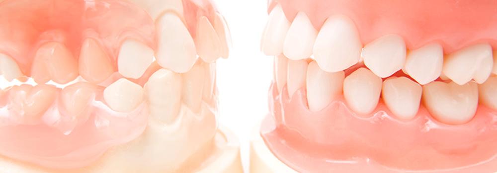 こう ざと 高松 歯科 矯正 りょう 内容 ち 矯正 歯科